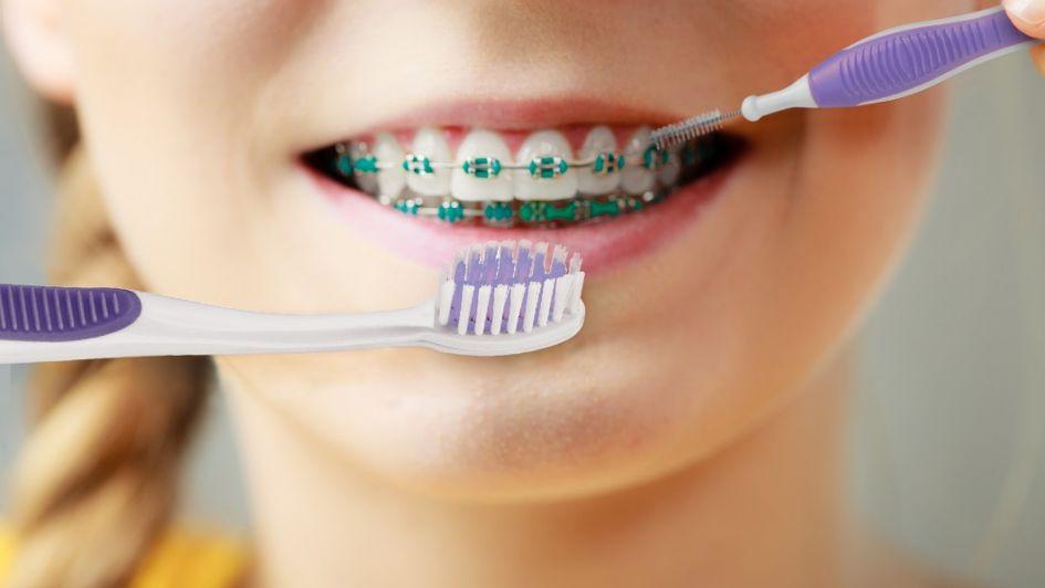 cepillo de dientes para brackets