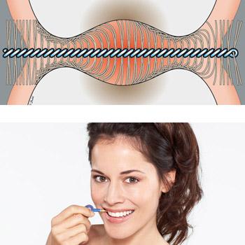 cepillo interdental o hilo dental