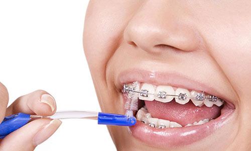 cepillo ortodoncia recomendaciones