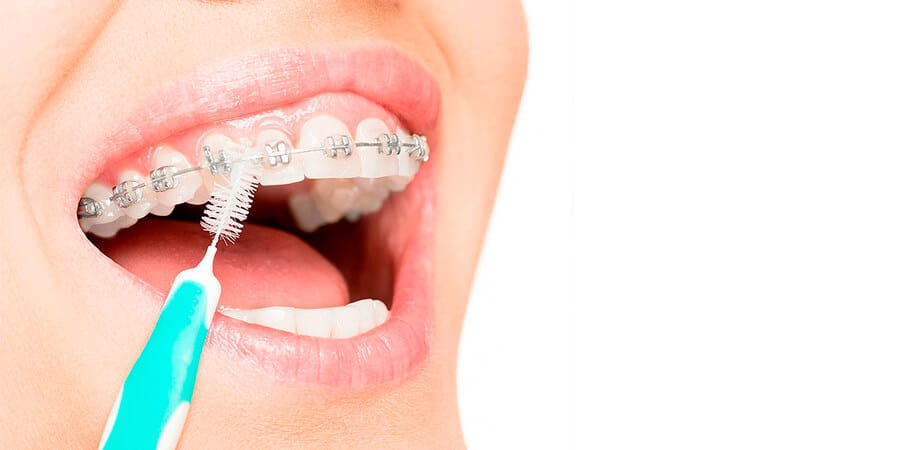 cepillo ortodoncia