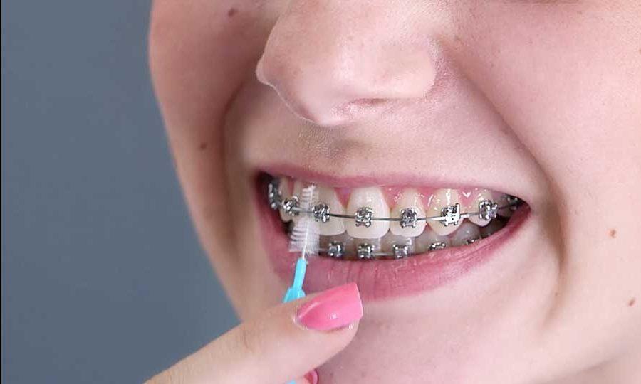 como usar cepillo de ortodoncia